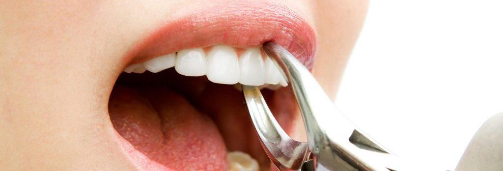 Wisdom-Teeth-Extraction-a-min-1024×683